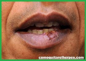 como-eliminar-herpes-labial-tratamiento-natural