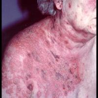 herpes zoster causas y tratamiento