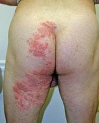 herpes genital y sus complicaciones,herpes y vih,herpes ets,enfermedades venereas,