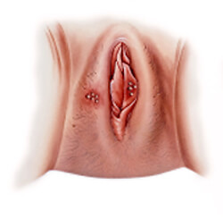 Small cuts in the vagina