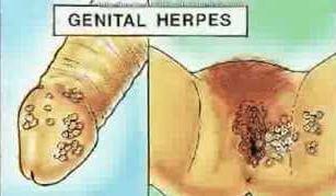 herpes-genital-masculino-femenino-complicaciones-58
