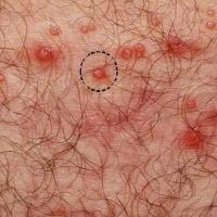 infeccion-herpes-genitales-espinillas-granos-64