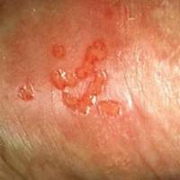 tratar-infeccion-herpes-genital-la-verda-65