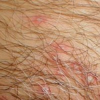 verrugas-herpes-genitales-cuales-diferencias-69