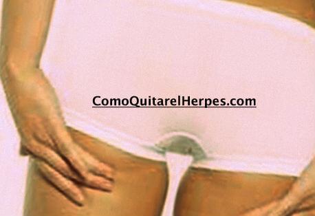 Herpes-en-el-Ano-Tratamiento