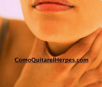Herpes-en-la-garganta-tratamiento-natural
