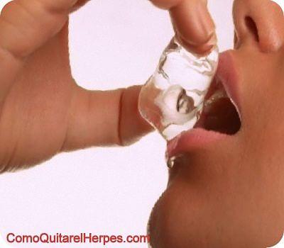 como-eliminar-el-herpes-labial-tratamiento-natural