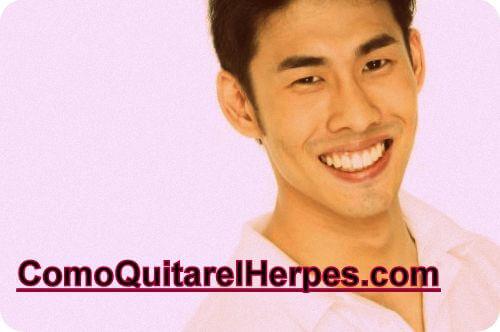 herpes-gental-tratamiento-casero-natural